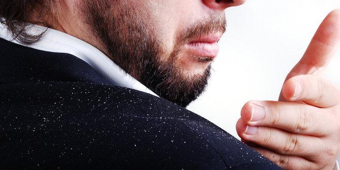 dermatitis seborreica o caspas