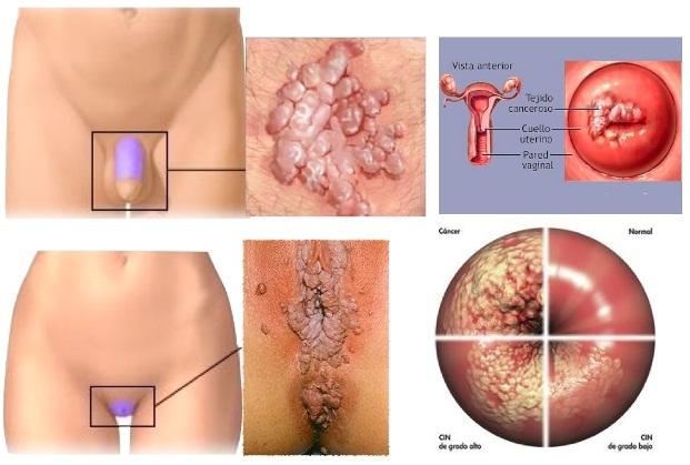 Hpv primi sintomi, Hpv primi sintomi Virus papiloma y vih
