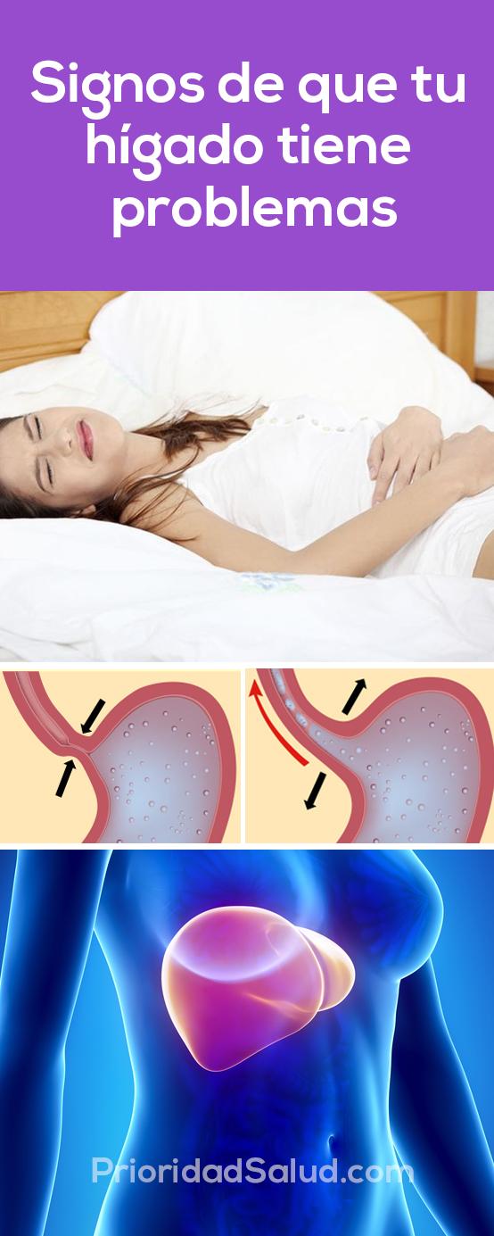 ¿Tienes higado graso? ¿Buscas como limpiar el higado o sabes si debes ver un médico? Estos son los 10 síntomas de que tu hídgado tiene problemas.