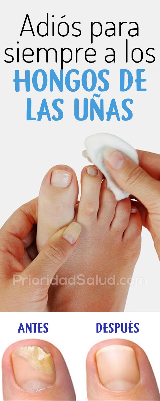 Remedios para eliminar los hongos de las uñas rapidamente