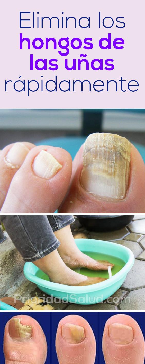 Elimina los hongos de las uñas rápidamente #uñas #hongos