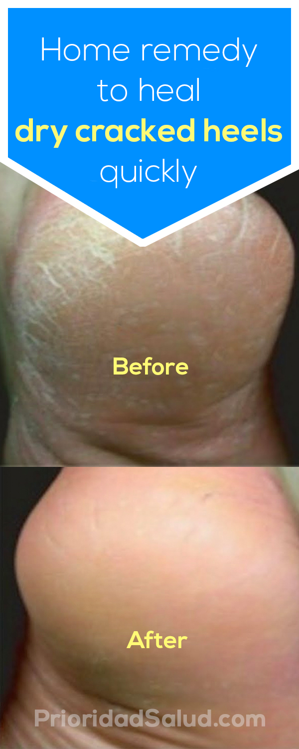Home remedy to heal dry cracked heels quickly