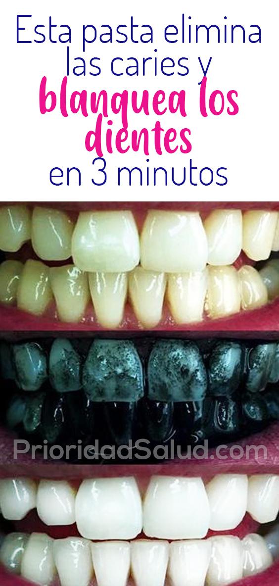 Esta pasta casera elimina las caries y blanquea los dientes en 3 minutos