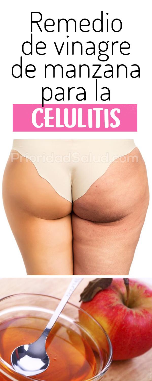 Como eliminar la celulitis con vinagre de manzana #piel #psalud #celulitis